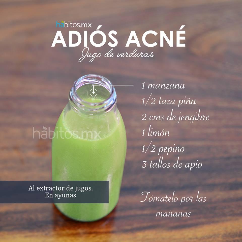 El tratamiento del acné por el método de la ozonización